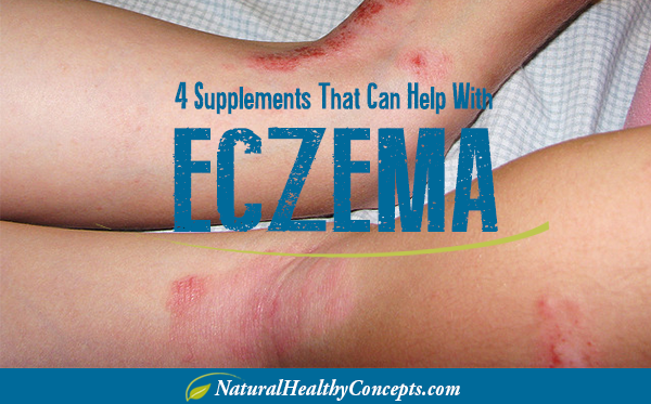 Supplements-for-Eczema