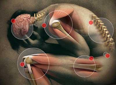 suffering from fibromyalgia