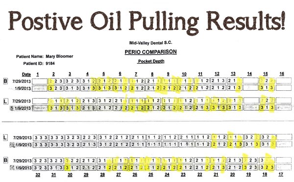 Postive oil-pulling-results