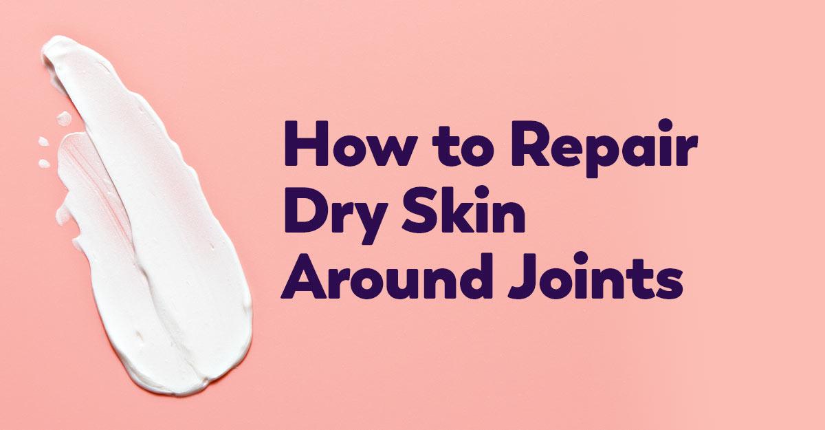 repair-skin-around-joints